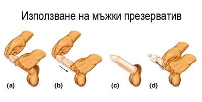 Види и размери клитора